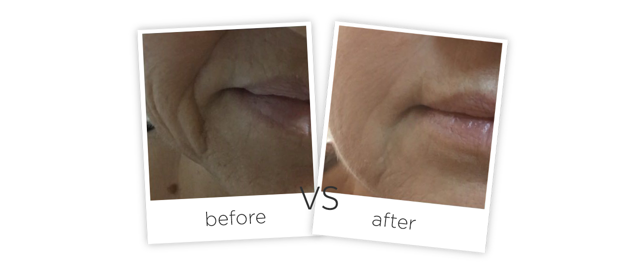 4D Skin Lifting Treatment results