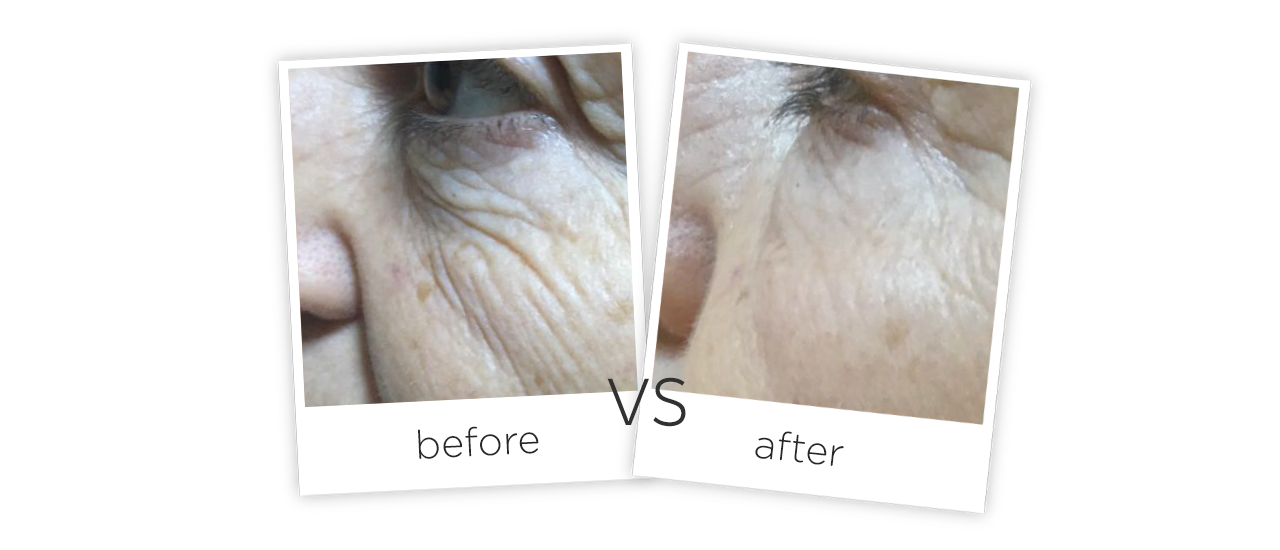 4D Skin Lifting Treatment Before&After