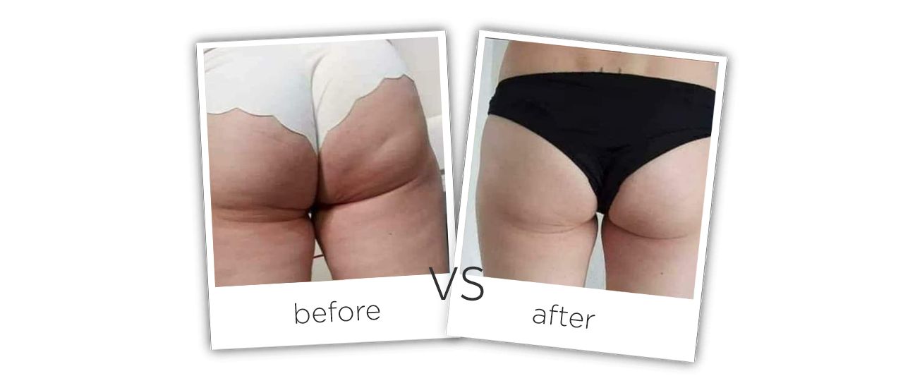 Vacuum Shape ,VS+ Before&After