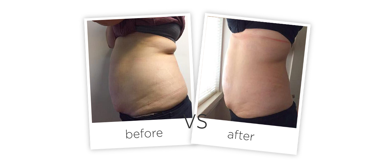 Vacuum Shape ,VS+ Treatment results