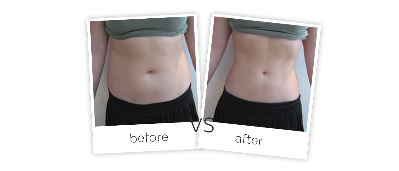 Vacuum Shape ,VS+ Treatment Before&After