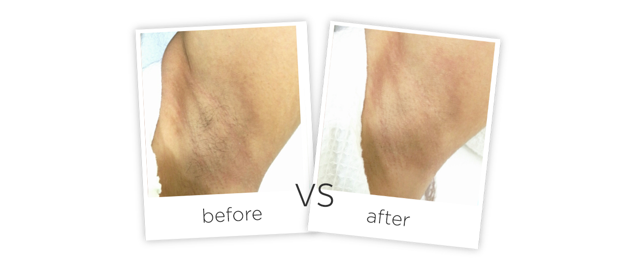Portable Diode Laser Hair Removal Equipment Before&After