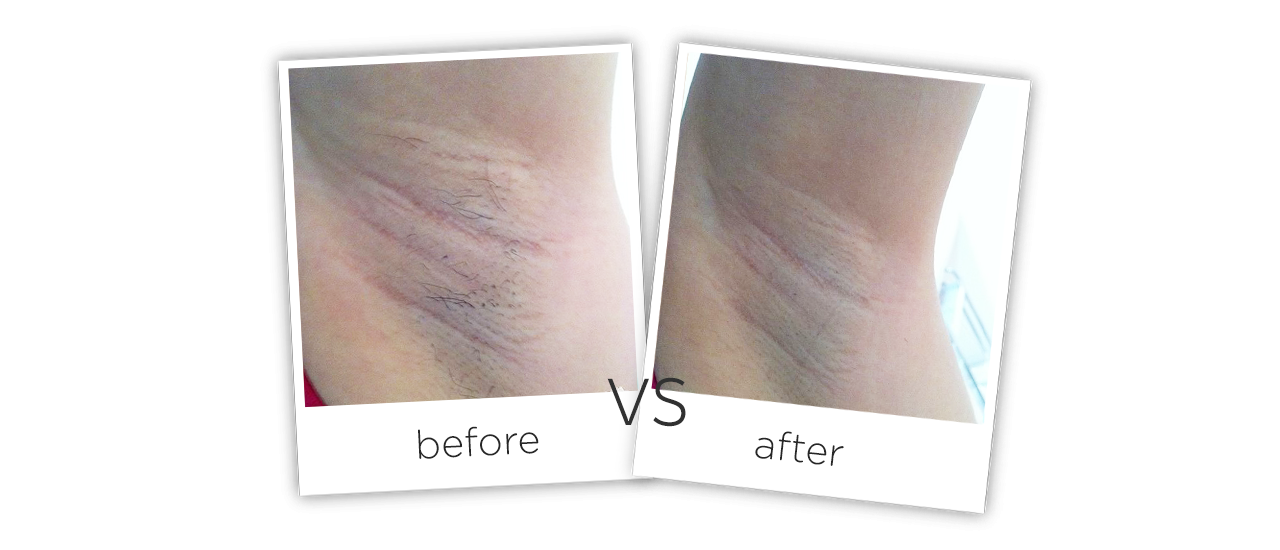 Portable Diode Laser Hair Removal Equipment Treatment results