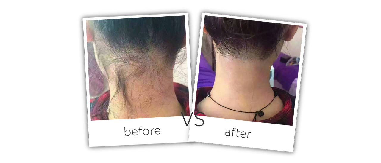Portable Diode Laser Hair Removal Equipment Treatment Before&After